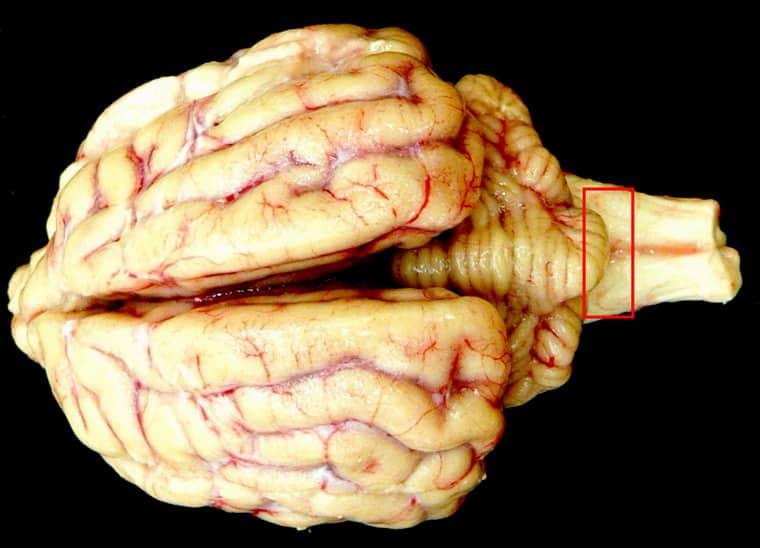 Гибель клеток главного органа центральной нервной системы, вызванная чрезмерным употреблением спиртных напитков