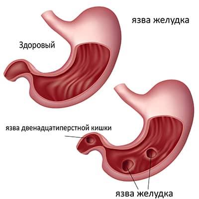 Поражение слизистой оболочки внутреннего органа, отвечающего за процесс пищеварения