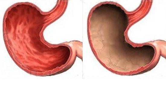 Патология желудка, вызванная чрезмерным употреблением алкоголя