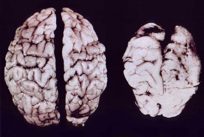 Мозг пьяницы