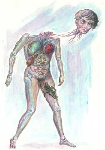 Патологические нарушения организма, вызванные постоянным приемом спиртного
